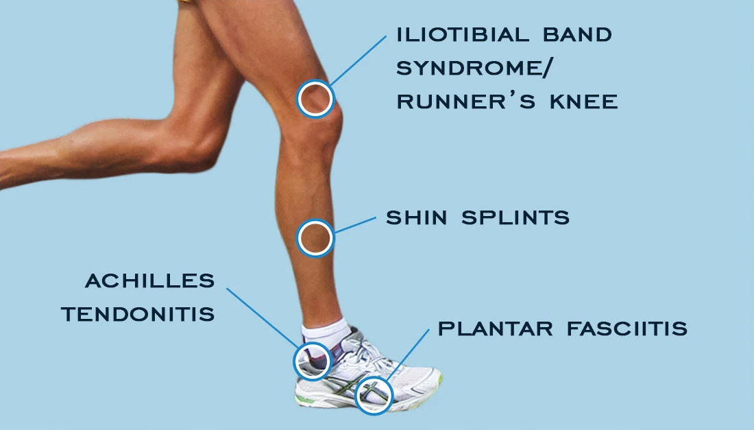 Diagram showing common running injuries that can be treated by physiotehrapy