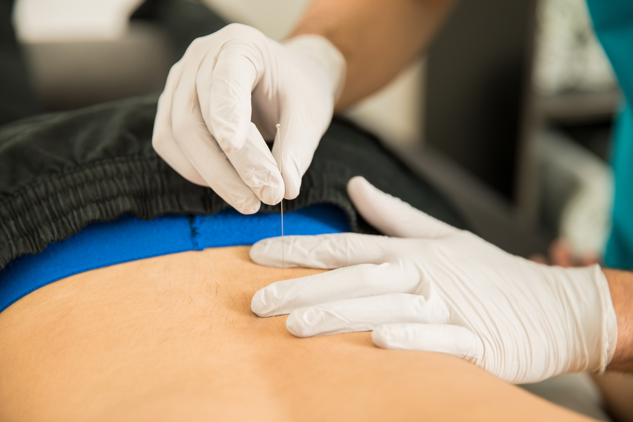 Physiotherapist performing dry needling treament on a back injury